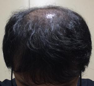 ミノキシジルタブレットをやめて再開し初期脱毛を受けた状態