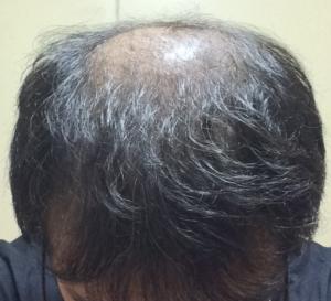 ミノキシジルタブレットをやめて再開し初期脱毛を受けた光で照らされた状態