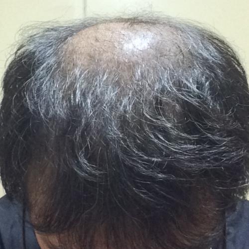 ミノタブの初期脱毛でスカスカになった状態からの回復