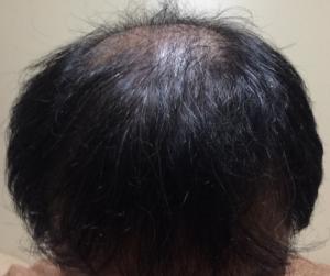 ミノキシジルタブレットによる初期脱毛マックスの状態
