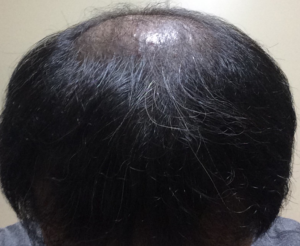 ミノタブの初期脱毛から1ヶ月経過した状態