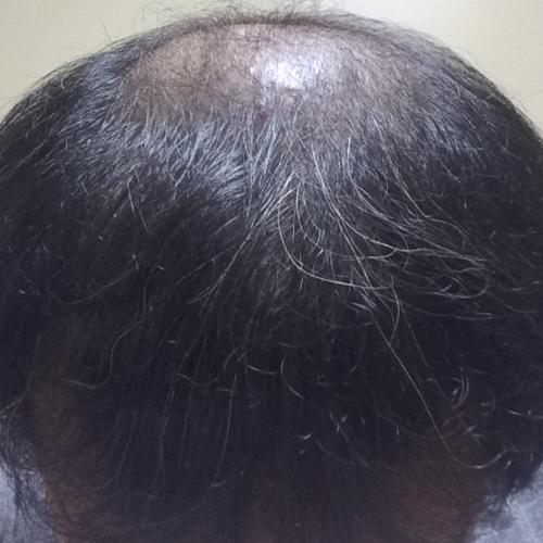 ミノタブ再開初期脱毛1ヶ月後の状態