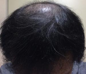 ミノタブの初期脱毛が完全に止まった状態の頭髪