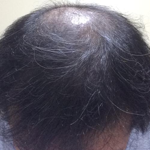ミノキシジルタブレットによる初期脱毛が完全に終わった頭髪