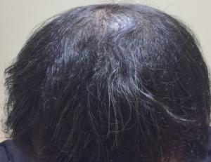 酷い初期脱毛から6週間経過