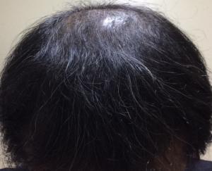 ミノタブの初期脱毛が終わって2週間後