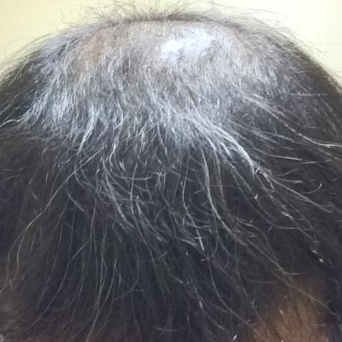 初期脱毛マックスから3週間経過