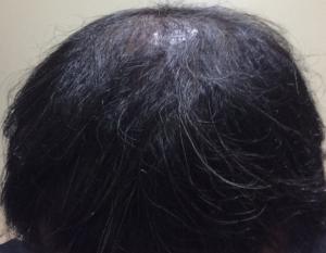 ミノキシジルの初期脱毛から5週後