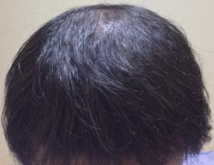 酷い初期脱毛から7週間後