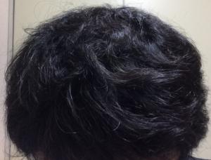 ミノタブは維持することで増毛もできる