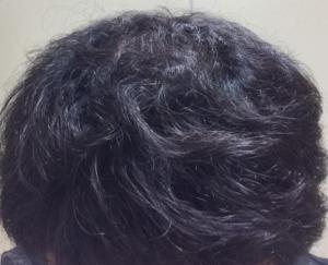 ミノキシジルタブレットの初期脱毛から回復しくせ毛が目立つ