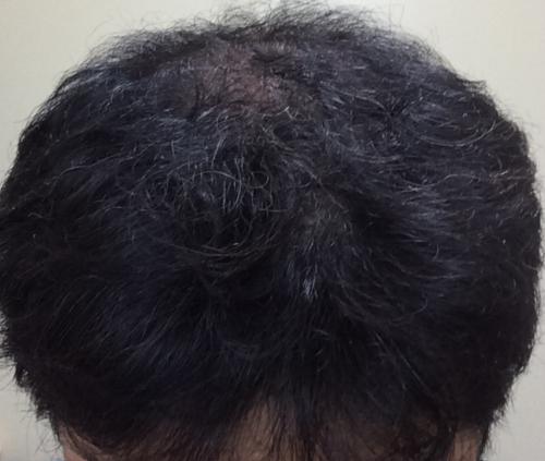 ミノタブの二次脱毛として自覚した時期