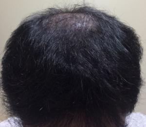 ミノタブ2次脱毛もしくはプロペシアの減薬による脱毛