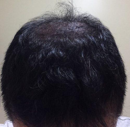ミノキシジルの2次脱毛からの復活を目指す
