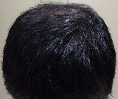 ミノタブ二次脱毛改善を目指す