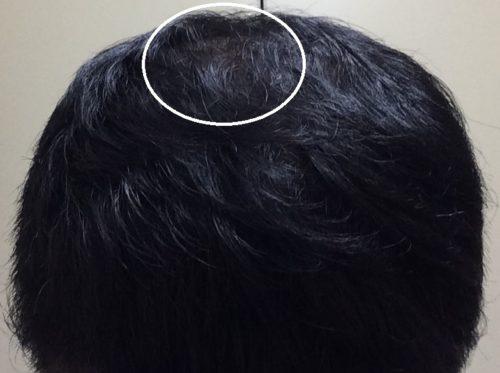 毛根の力が弱くなっている頭頂部の回復が弱い
