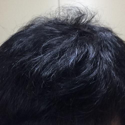 ミノタブ再開からの初期脱毛を経て1年