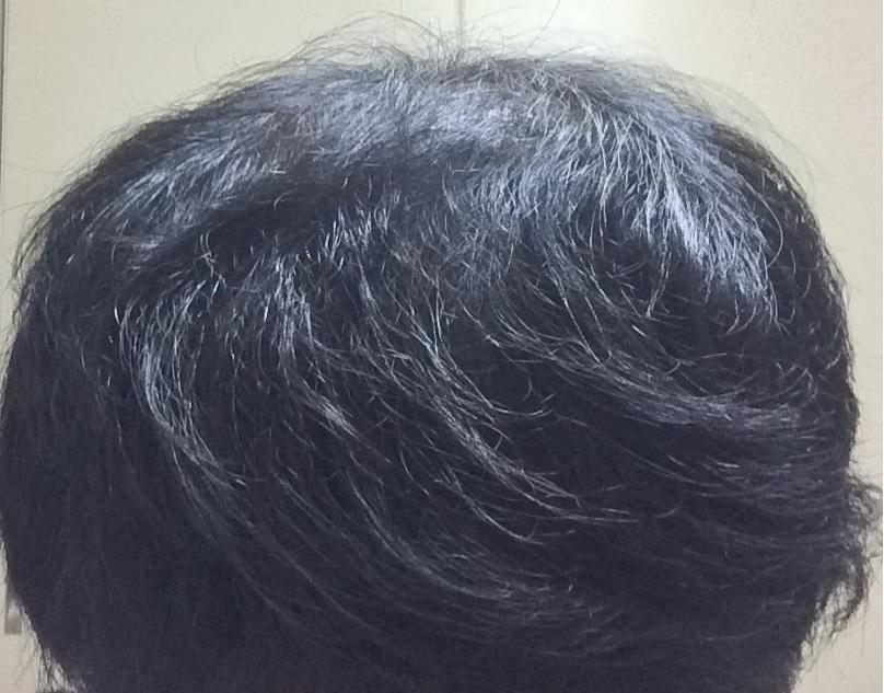 初期 脱毛 プロペシア 脱毛が止まらない!?プロペシアの初期脱毛の原因と期間まとめ